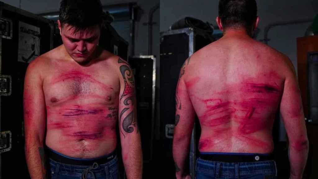Así quedó el cuerpo de Dominik tras la paliza sufrida a manos de Seth Rollins