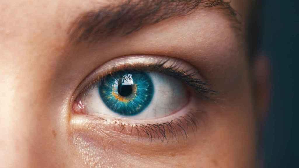 La inyección de ácido hialurónico disminuye las ojeras y las líneas de expresión.