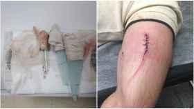La herida perpetrada por el agresor y presidiario.