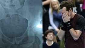 Andy Murray y su radiografía de cadera