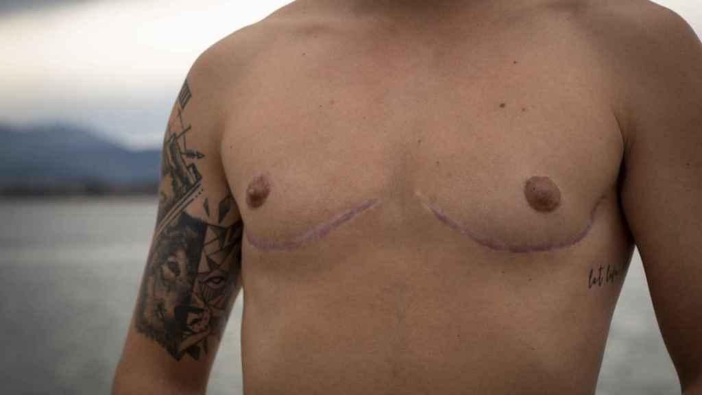 Se sometió a una mastectomía bilateral en diciembre de 2019.