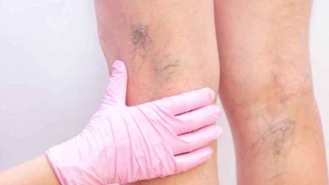 Las varices afectan principalmente a las mujeres.