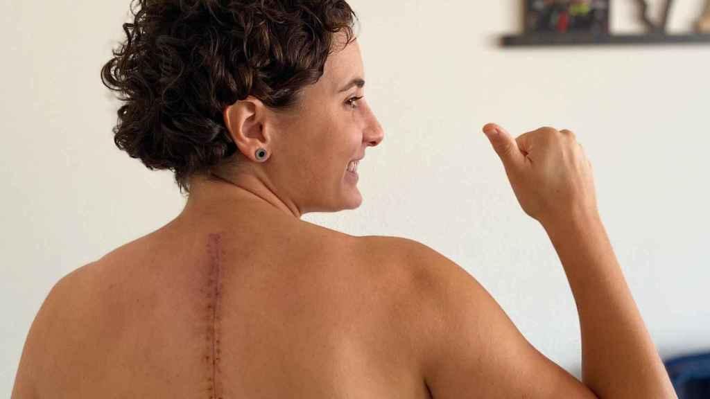 Ana Carrasco muestra la cicatriz de su espalda