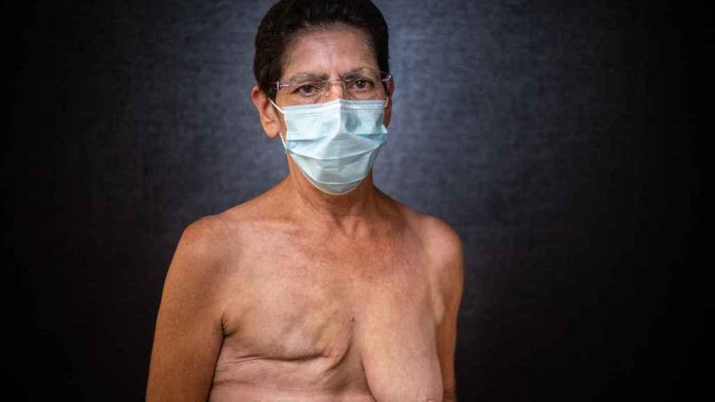 Josefa González tiene una mastectomía del pecho derecho.