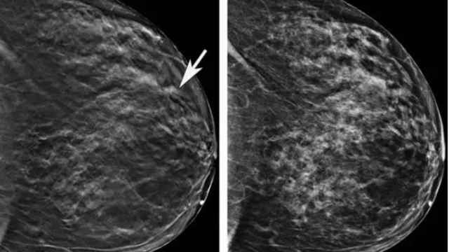 Imagen de una mamografia.