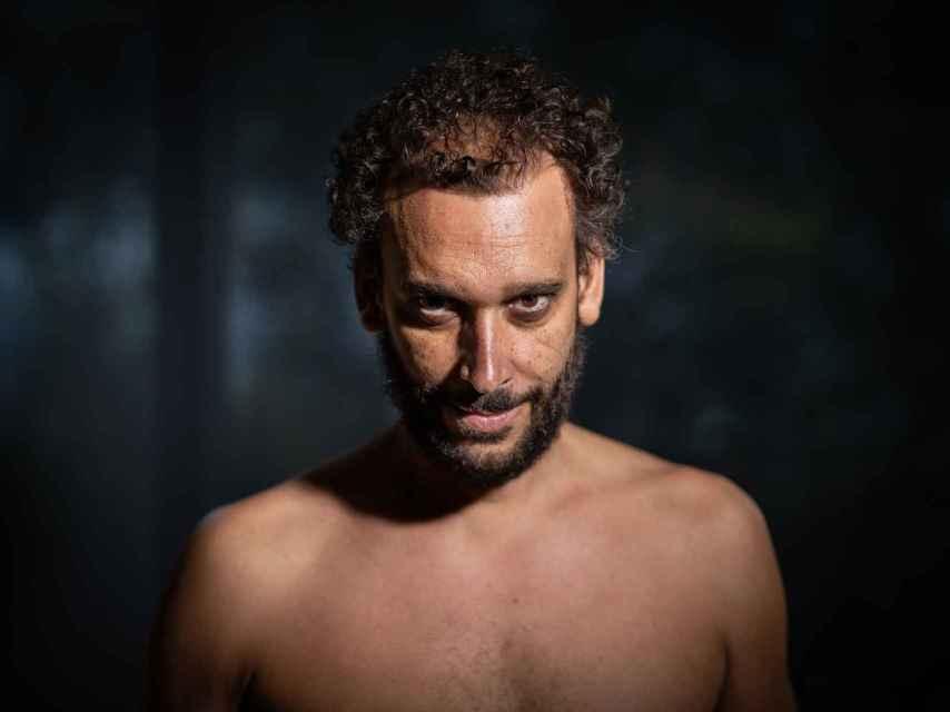 Jesús Candel, 'Spiriman' mostrando su torso tras varias sesiones de quimioterapia.