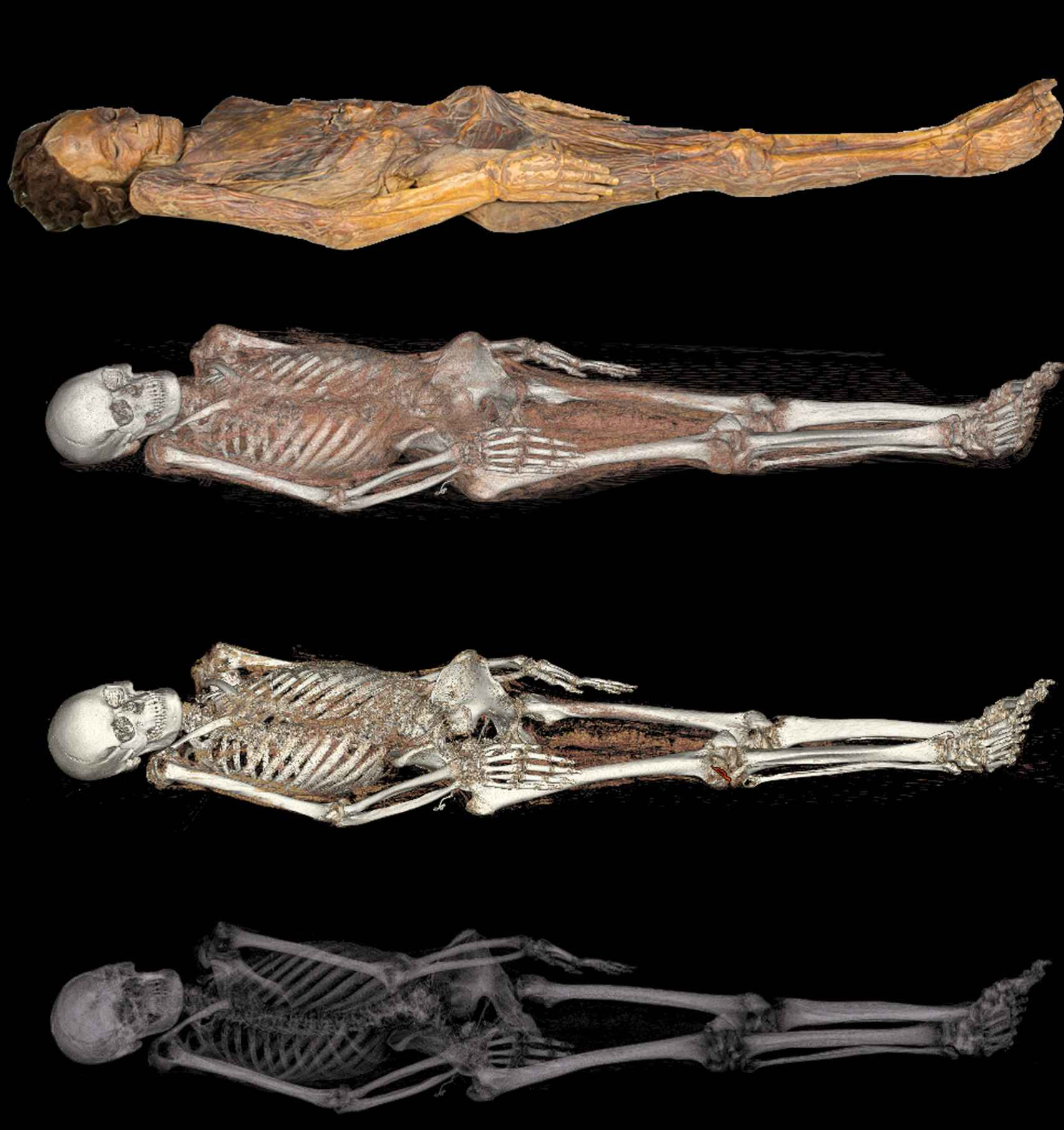 Diferentes niveles de la Tomografía Axial Computarizada.