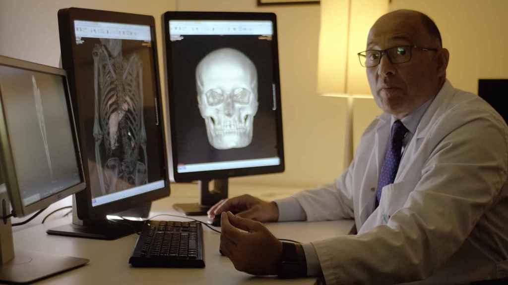 El doctor Javier Carrascosa interpretando los resultados de la Tomografía Axial Computarizada realizada a la momia guanche, donde se aprecian sus órganos internos.