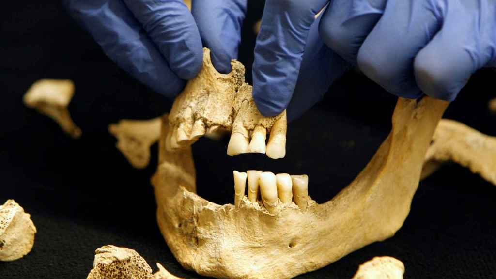 Detalle de la mandíbula del caballero ajusticiado de la segunda mitad del siglo XIV.