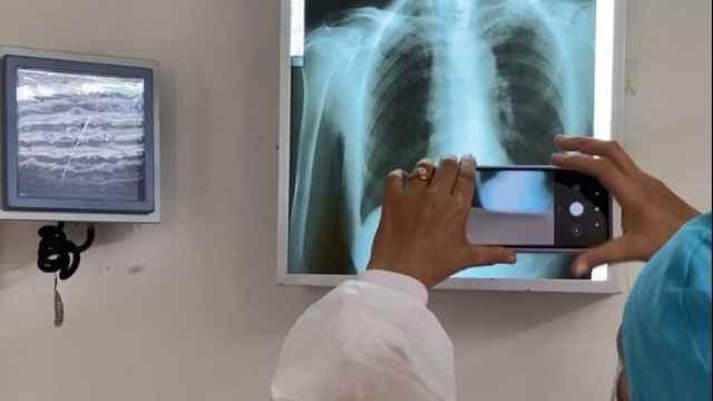 El software de Arkangel AI procesando un placa de rayos X.