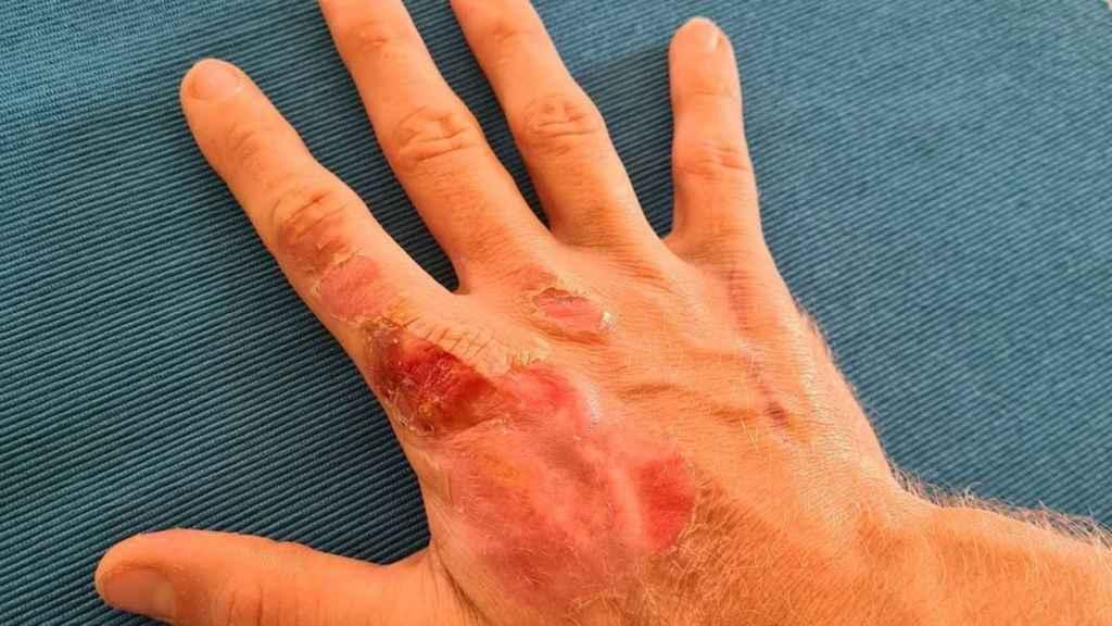 La mano de Grosjean