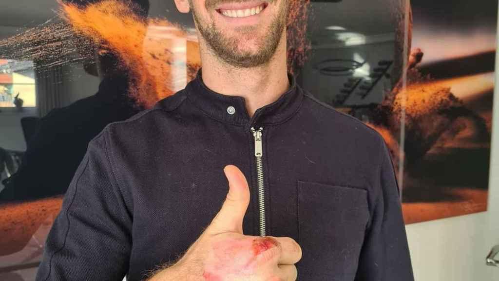 Grosjean muestra sus quemaduras de las manos