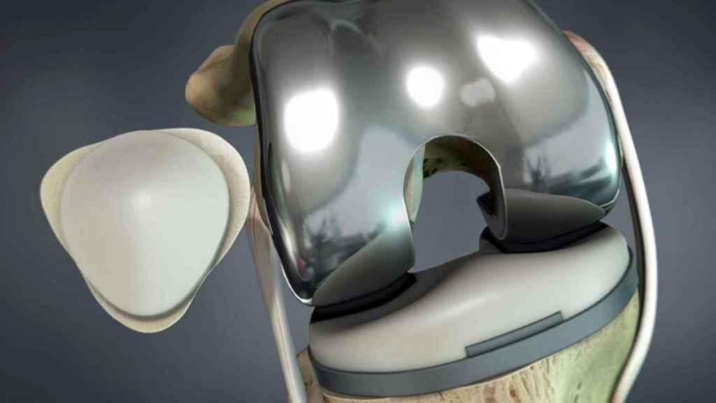 Prótesis y dispositivo portable desarrollado por el IBV.