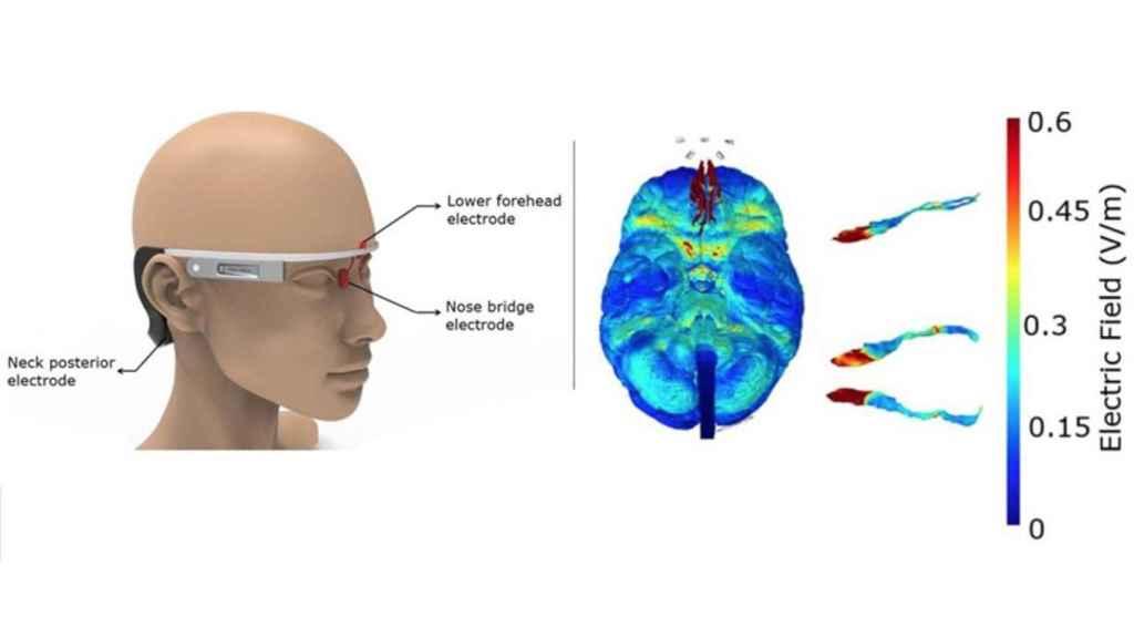 Estas gafas ayudarán a prevenir el alzheimer.