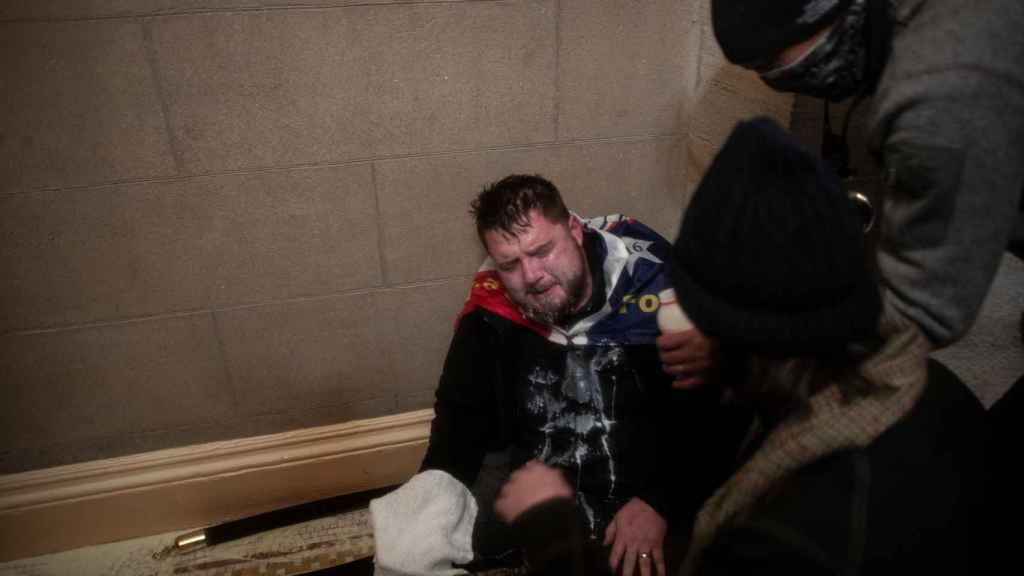 Un manifestante herido durante el asalto al Capitolio.