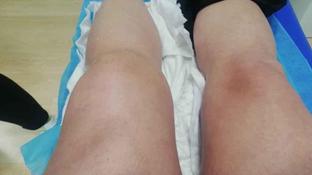 Los médicos del Hospital San Cecilio de Granada aguardaron varios meses para operar a la paciente porque tenía la rodilla inflamada.