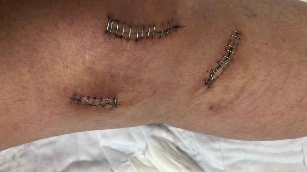 Los puntos en la rodilla izquierda de la víctima.