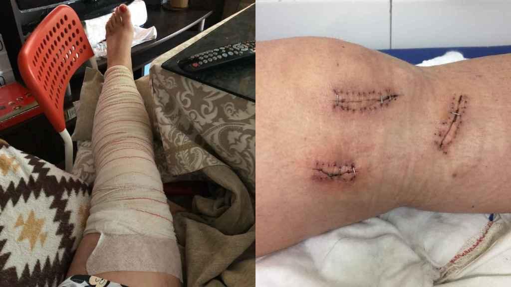 Así quedó la pierna de la víctima durante casi un año, y en paro.