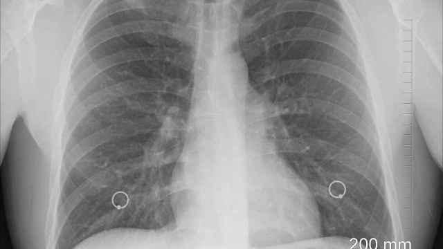 Radiografía de la zona torácica. Foto: Pixabay.