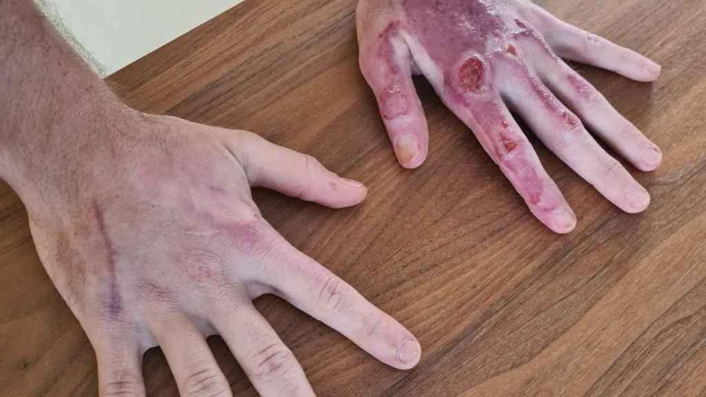 Las manos de Romain Grosjean dos meses después de su accidente en Sakhir