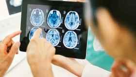 Un equipo médico examina radiografías de encéfalo.
