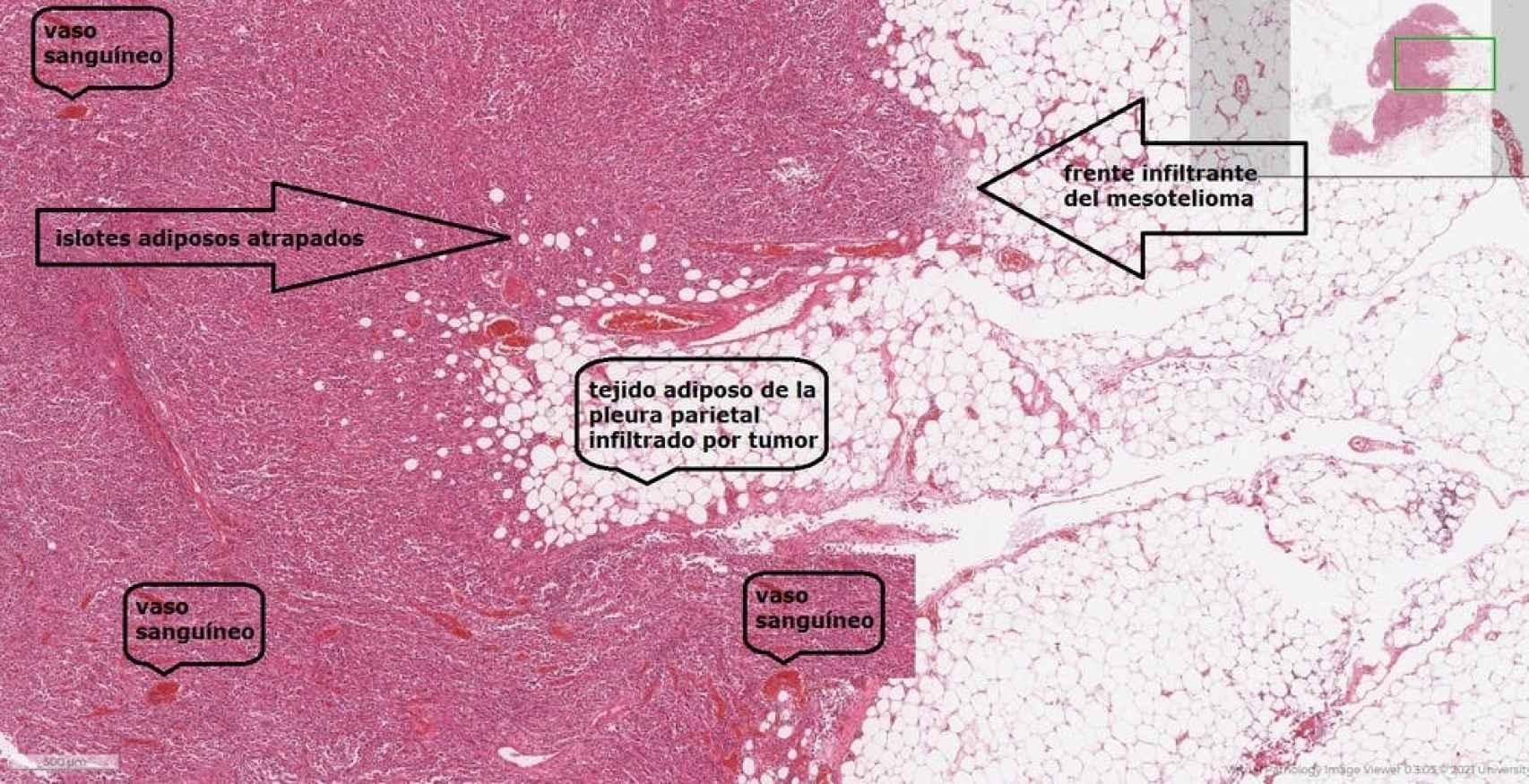 Imagen histológica a medianos aumentos de un mesotelioma con elevado grado de anaplasia procedente del microscopio virtual de la Universidad de Leeds