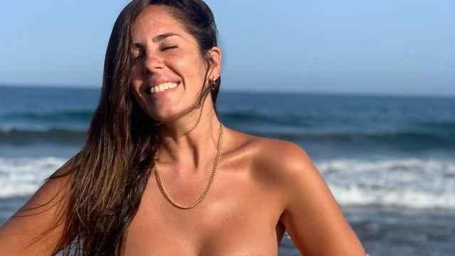 Imágenes del día: Das asco, fuertes críticas a Anabel Pantoja tras mostrar su piel de naranja