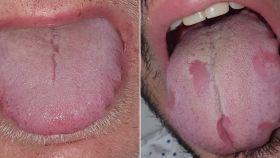 Las imágenes de la lengua de dos pacientes.