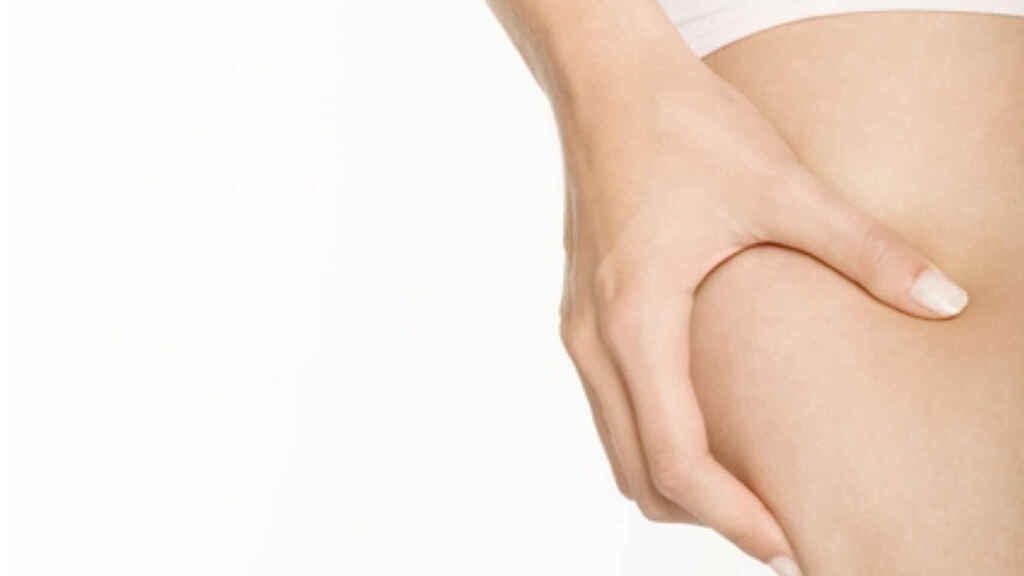 Los lugares en los que se acumula la grasa en las extremidades.