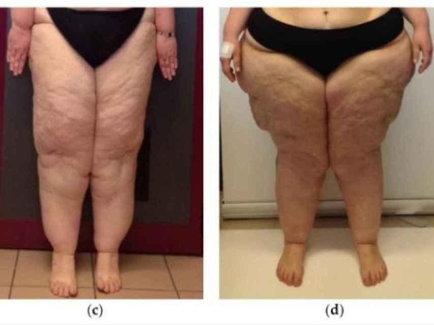 (c) Tercera fase, con inflamación del tejido (d) Cuarta fase, lipodema y linfedema (inflamación de ganglios linfáticos)