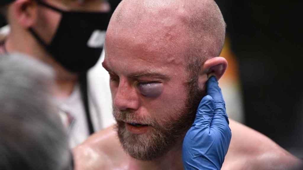 La cara de Justin Jaynes tras su pelea con Devonte Smith. Foto: Twitter (@UFC)