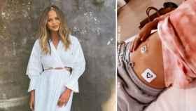 La modelo, Chrissy Teigen, y una imagen de su tripa que subió a las redes sociales tras la operación.