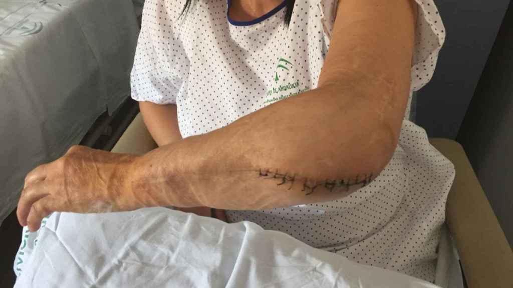 Carmen mostrando los injertos de piel y las secuelas en su brazo izquierdo tras uno de sus ingresos hospitalarios.