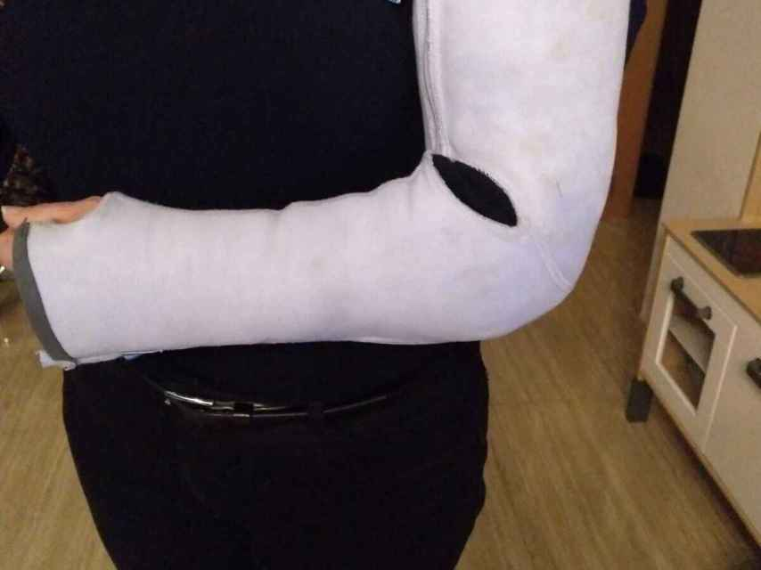La ortesis fija que Carmen debe llevar en su brazo izquierdo porque no tiene estabilidad.