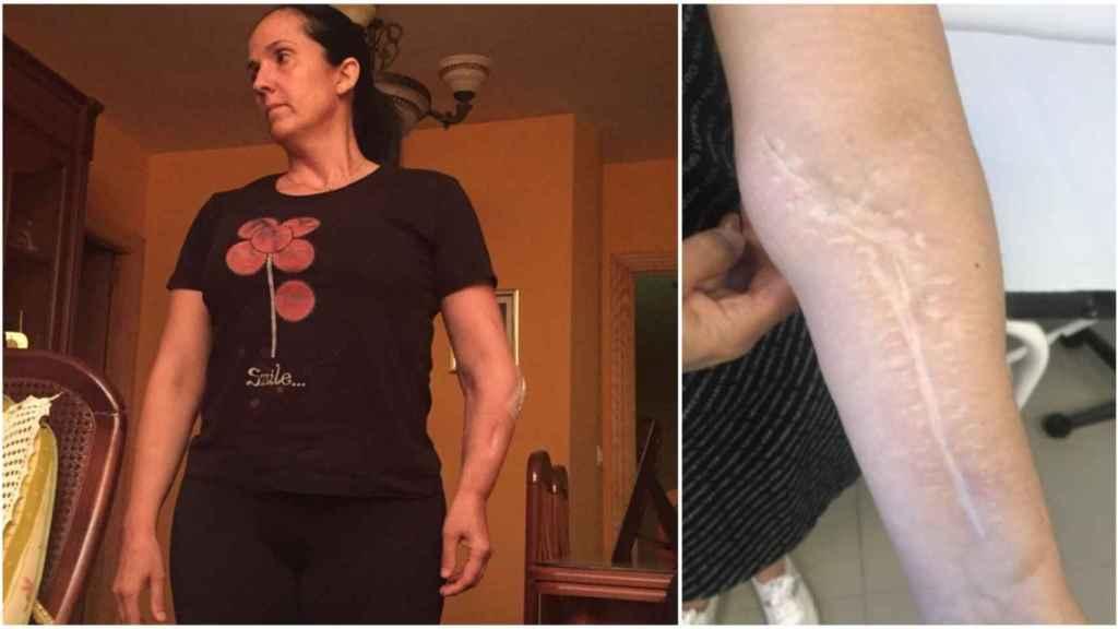 Carmen después de 29 operaciones sufre un acortamiento en su brazo izquierdo.