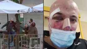 Uno de los policías gesticula durante la paliza y la víctima con las heridas.