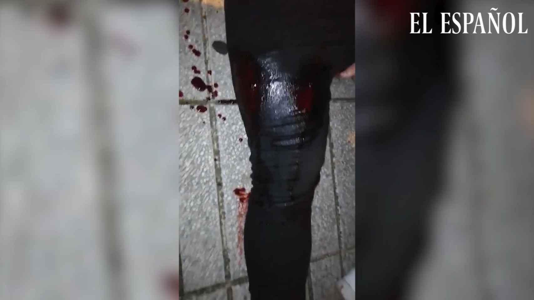 El empresario herido por un cartucho con postas en Linares