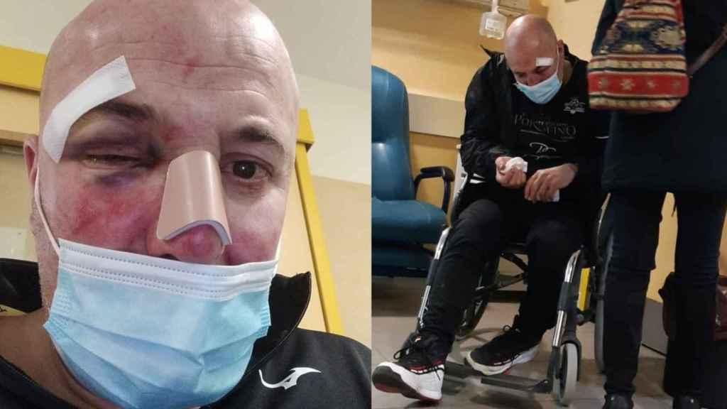 Carlos, en el hospital, después de ser agredido por dos policías nacionales en Linares.