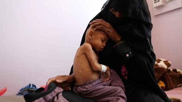 Un niño con severos signos de malnutrición en Yemen.