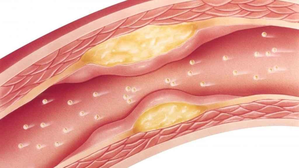 Representación de las adherencias de colesterol en las arterias.