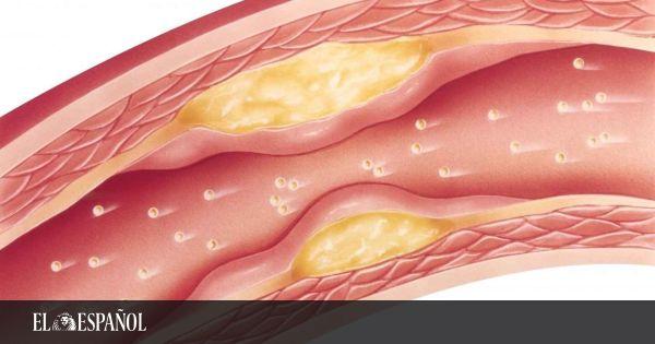Ésta es la nueva técnica que puede reducir el colesterol con una dosis cada 6 meses