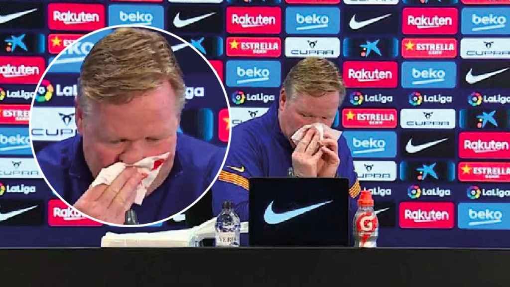 Koeman sangra por la nariz en rueda de prensa
