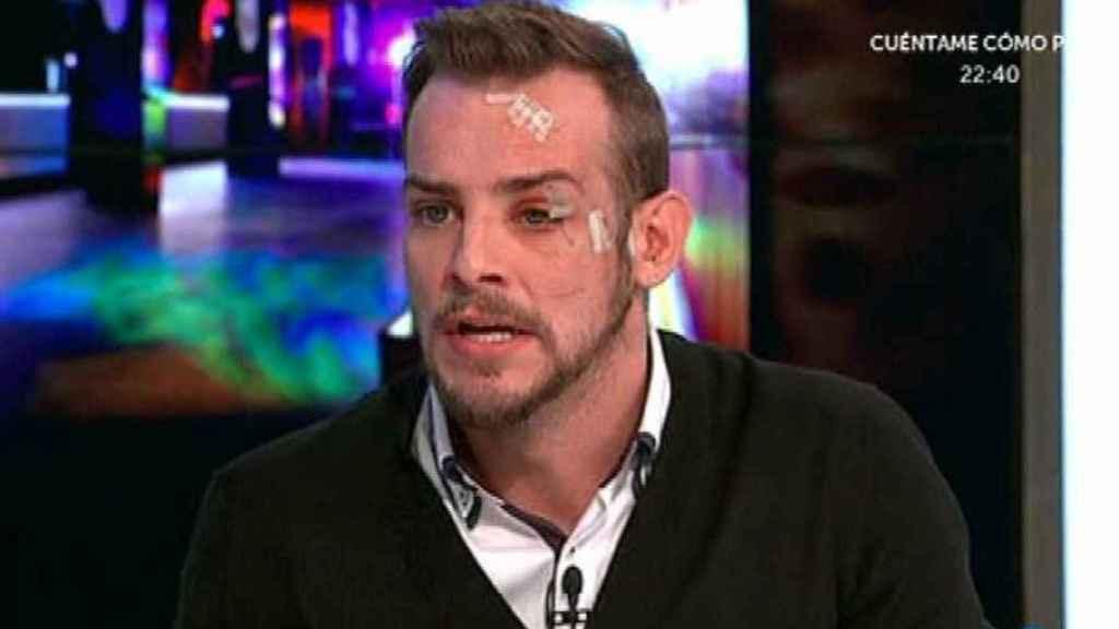 El rostro de Álex tras su sonada pelea en una discoteca de Vigo en 2017.