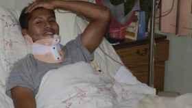 Edwin Tumiri ha sobrevivido a dos accidentes.