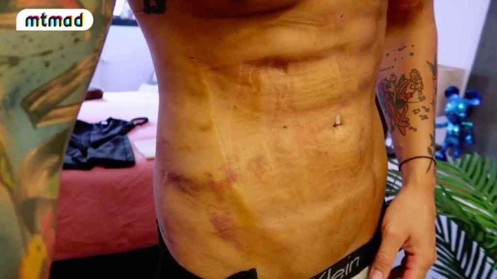 Así mostró Diego Matamoros su abdomen tras someterse a una lipo este verano.