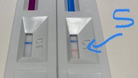 Resultados de dos test rápidos de anticuerpos con la misma muestra.