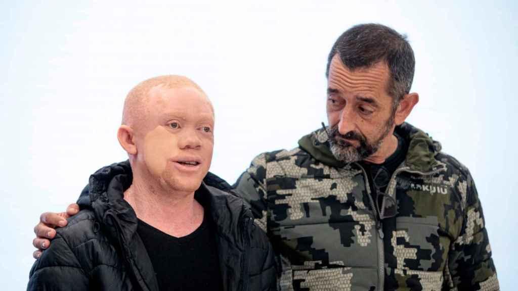Reginaldo, el albino negro operado por Pedro Cavadas de cáncer de piel.