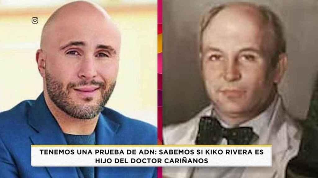 Kiko Rivera en una comparativa junto al doctor Cariñanos en el programa 'Socialité'.