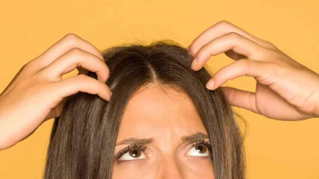 El cuero cabelludo afecta igual a mujeres y hombres y puede darse también en edad adulta.