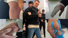 En el centro de la imagen Norbert Feher, alias 'Igor El Ruso'. Y alrededor las lesiones que ha provocado en los funcionarios agredidos.